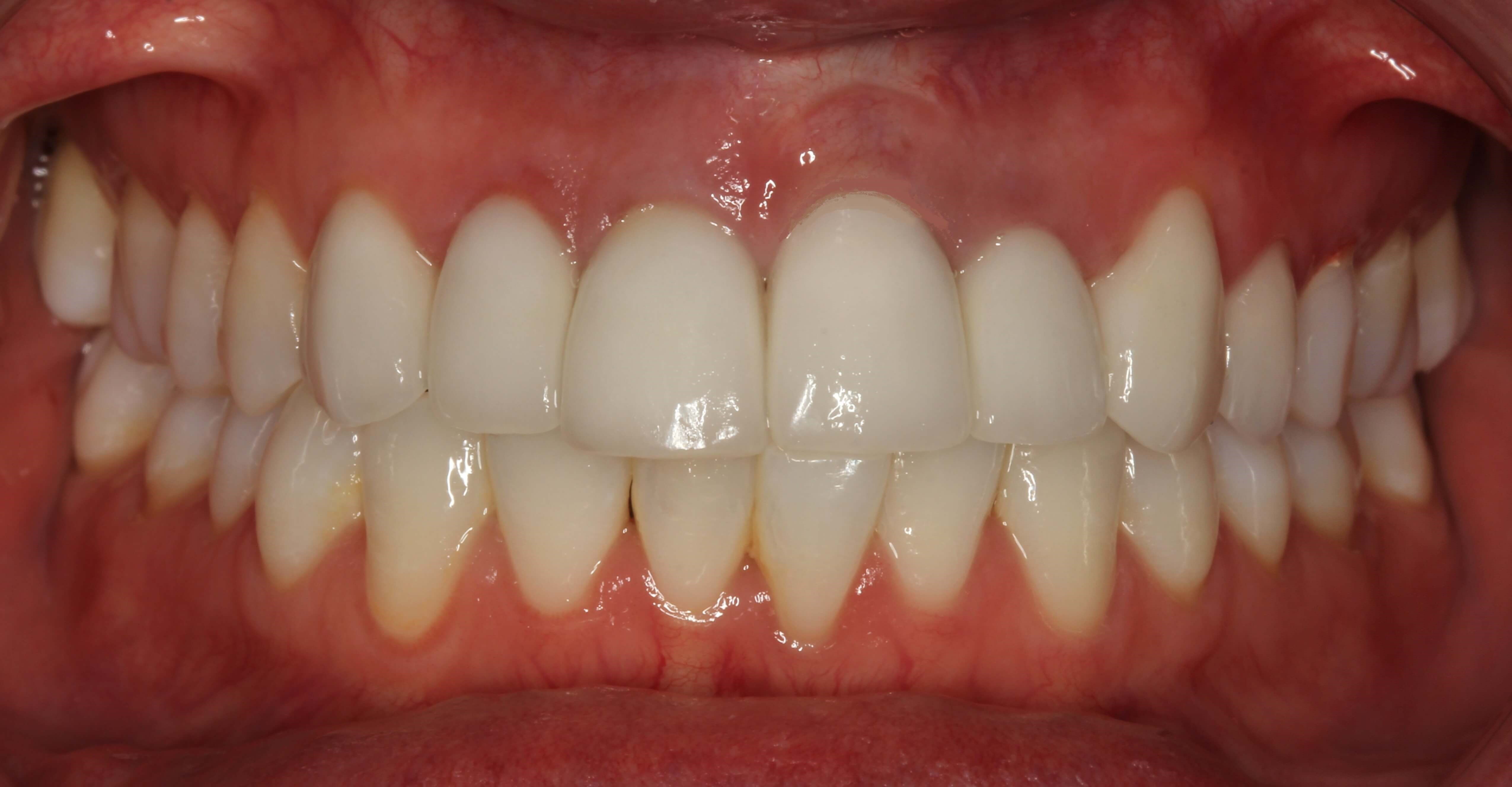 Successful Veneer Case in NYC After