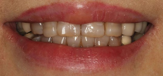 Incredible Smile Makeover Before