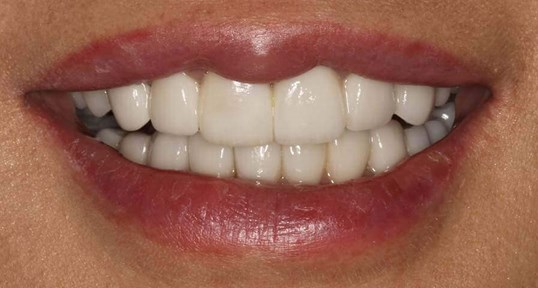 Incredible Smile Makeover After