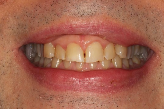 Smile Makeover at SmilesNY NYC Before