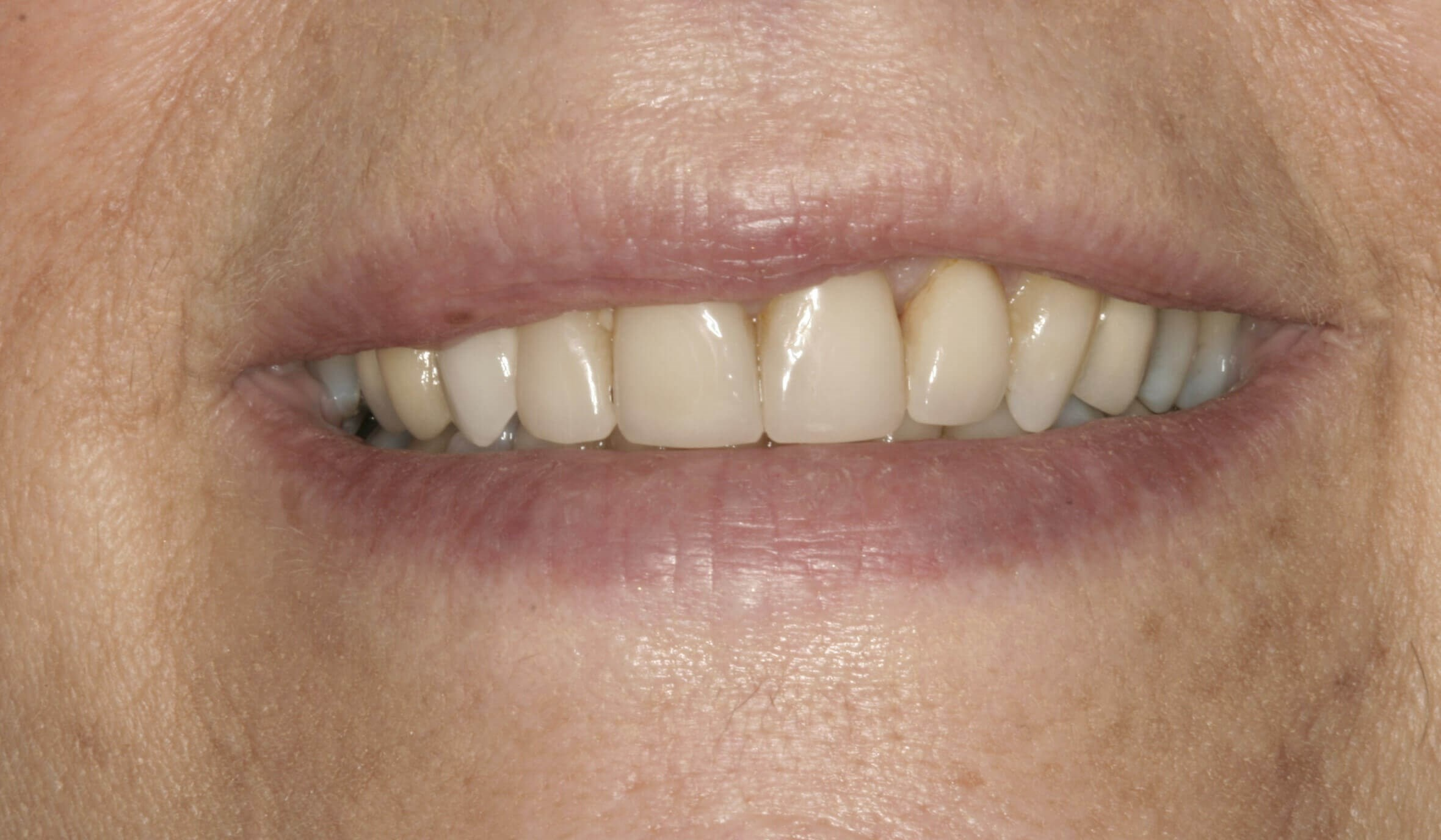Stunning Veneers at SmilesNY Before