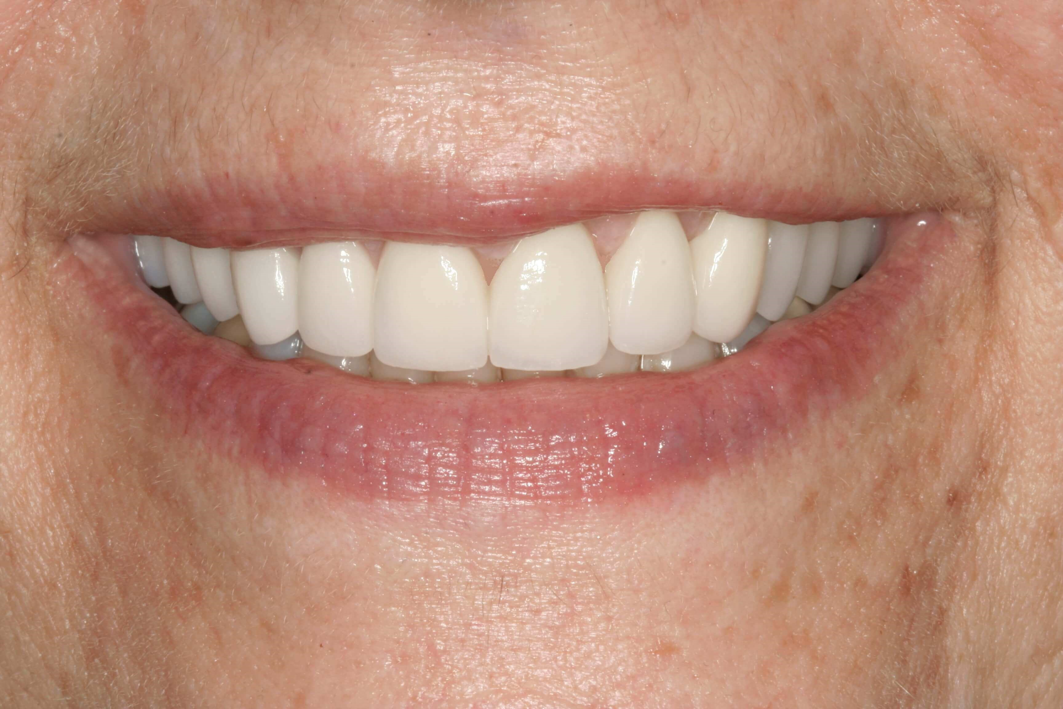 Stunning Veneers at SmilesNY After