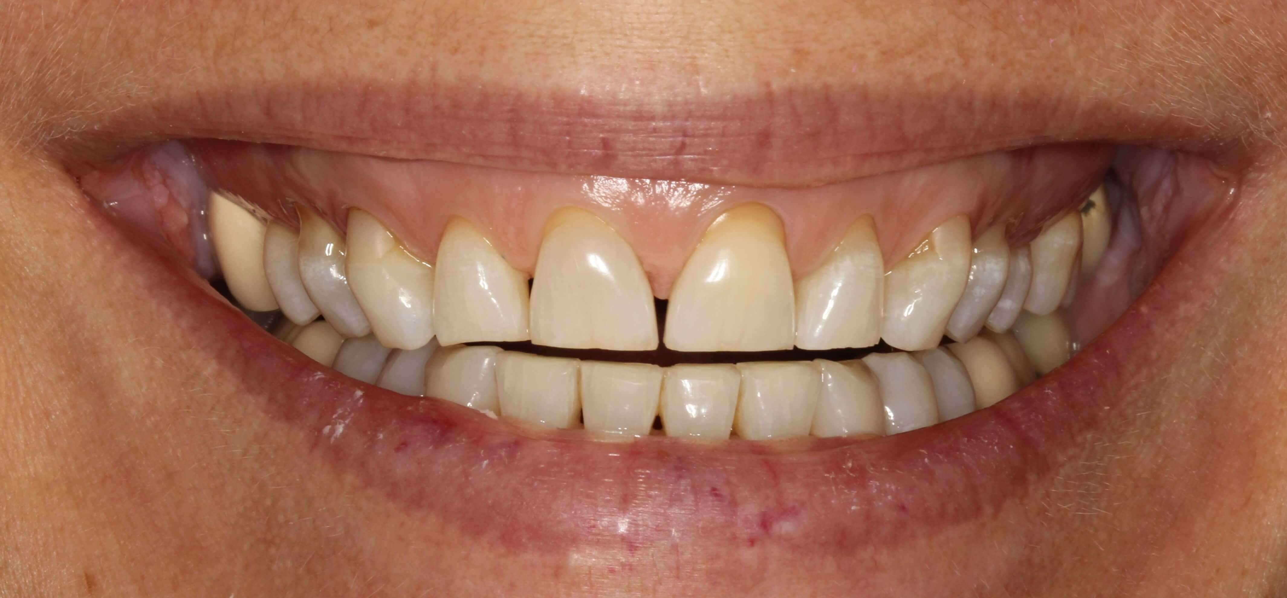 Crowns, Veneers & Gum Surgery Before
