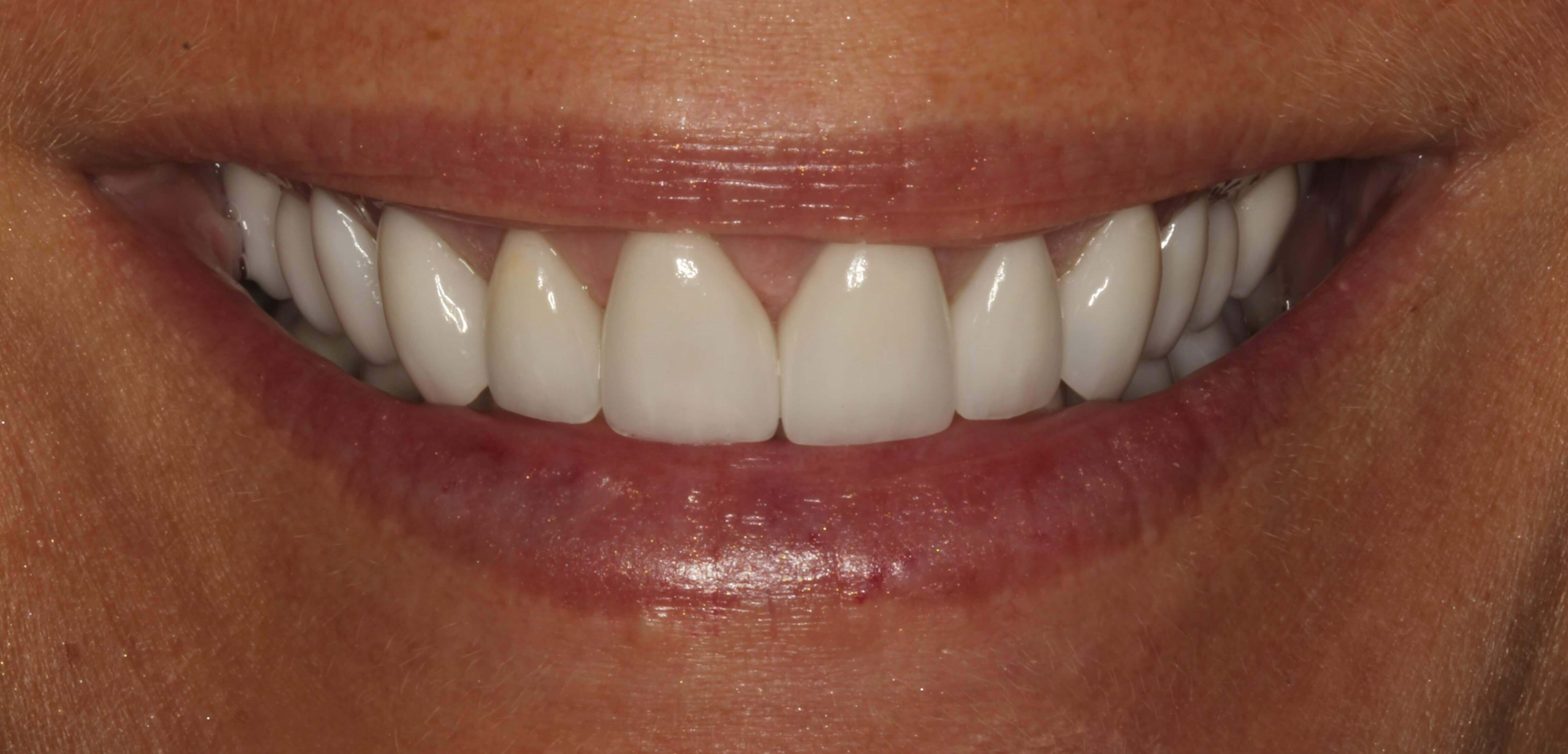 Crowns, Veneers & Gum Surgery After