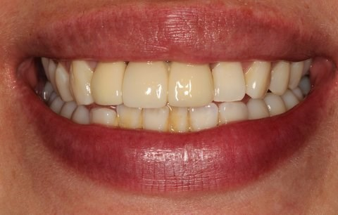 Cosmetic Makeover SmilesNY Before