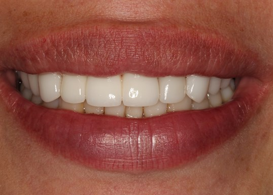 Cosmetic Makeover SmilesNY After