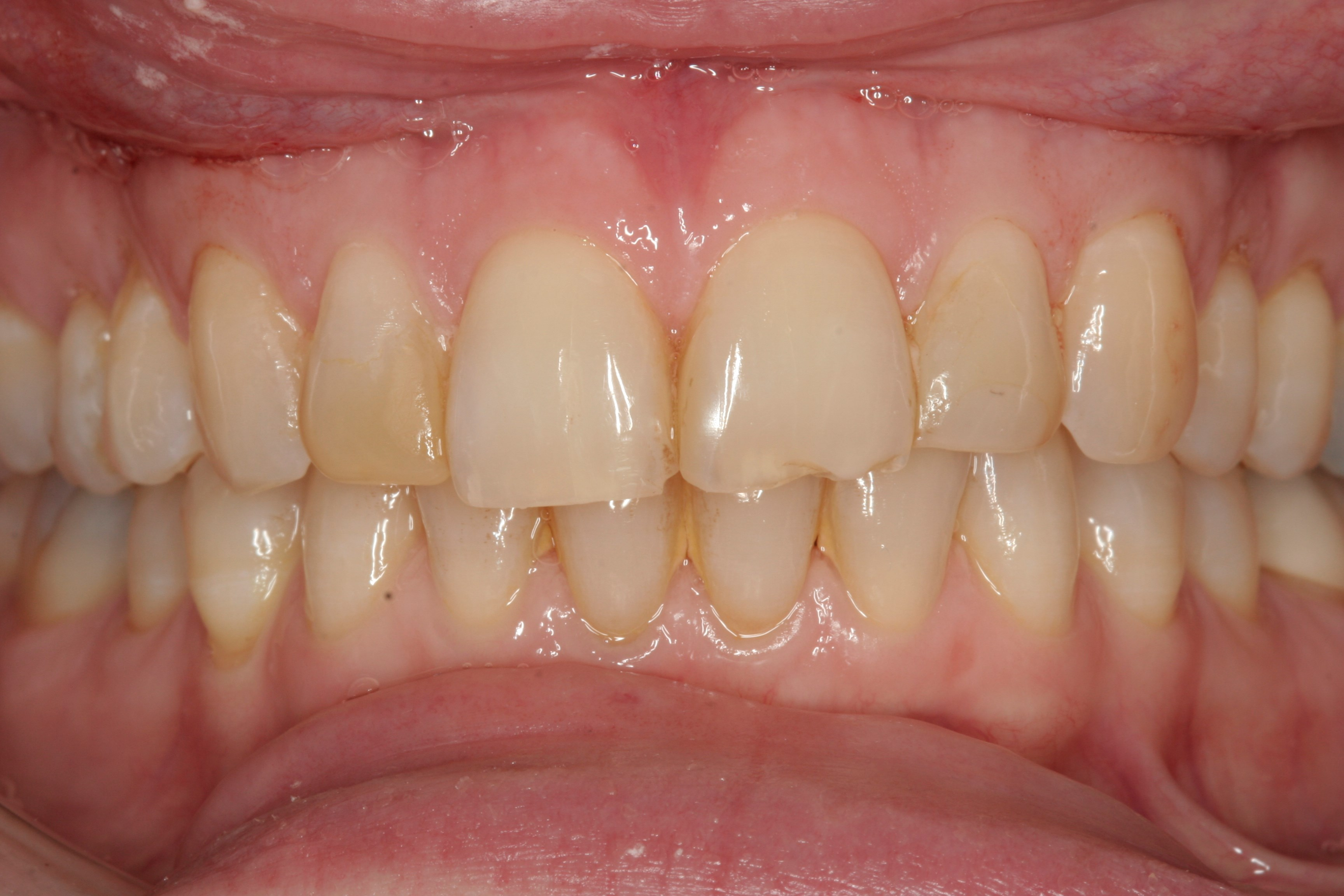 Porcelain Veneers NYC Before