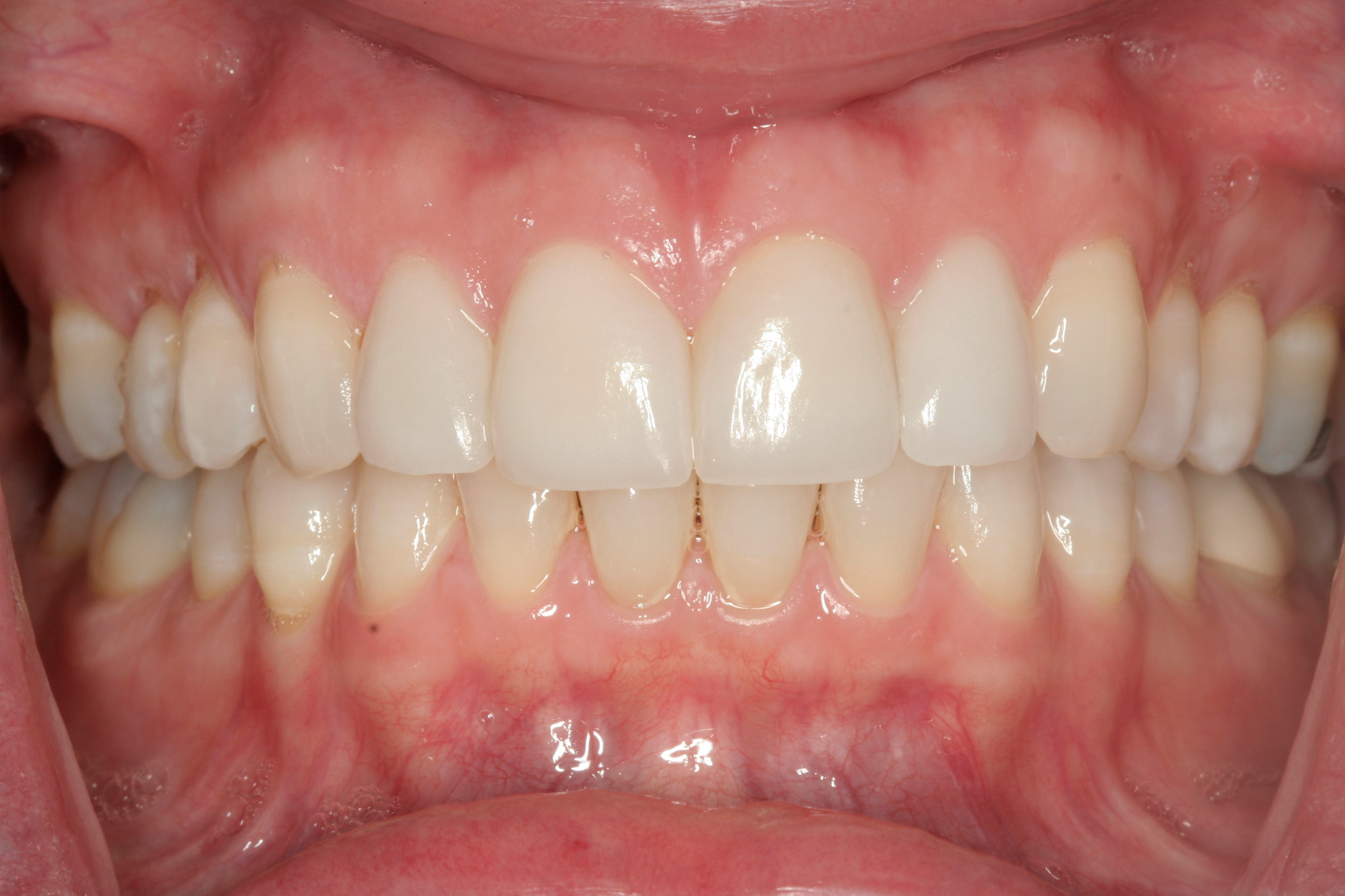 Porcelain Veneers NYC After