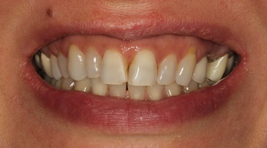 Veneers and Implant Crowns Before