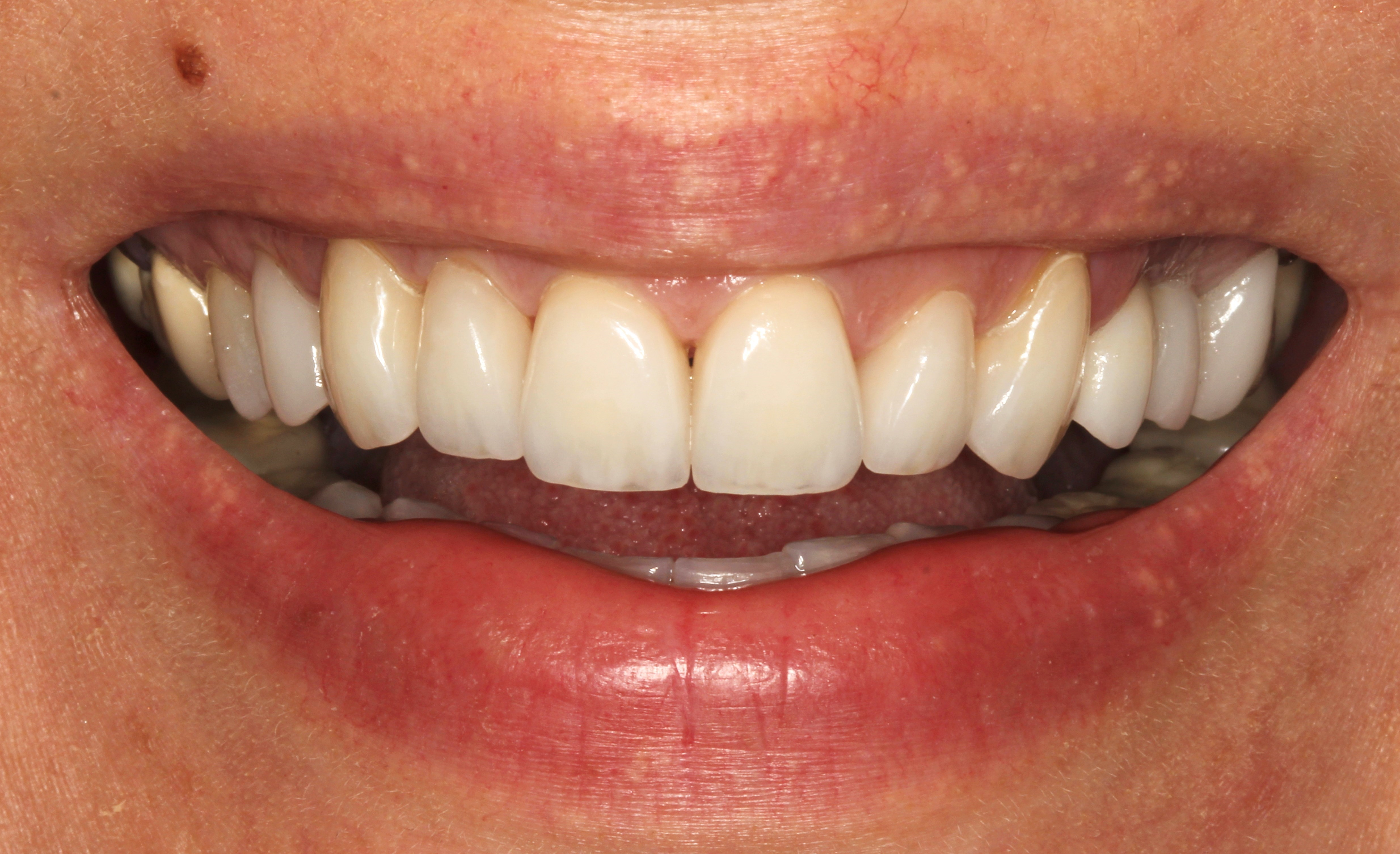 Veneers and Implant Crowns After