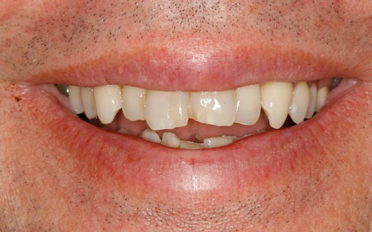 SmilesNY Smile Makeover Before