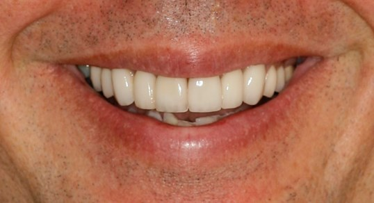 SmilesNY Smile Makeover After