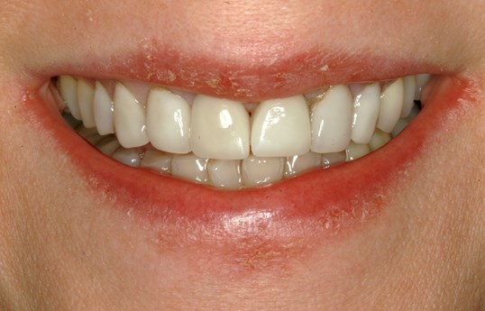 Beautiful Veneers at SmilesNY Before