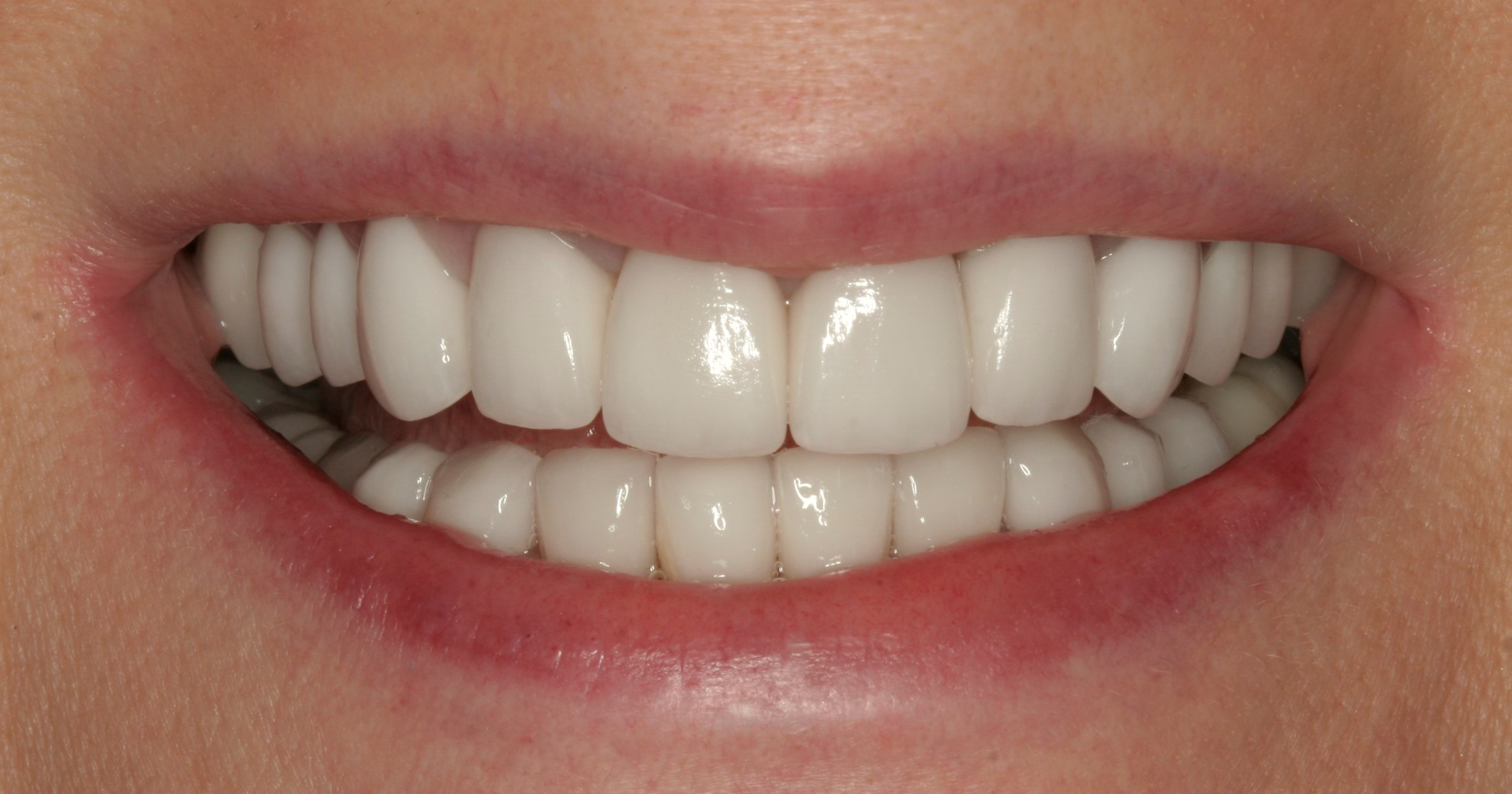 Beautiful Veneers at SmilesNY After