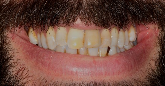 Veneer and Whitening Case Before