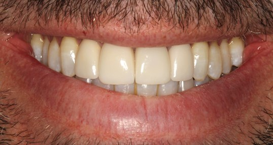 Veneer and Whitening Case After