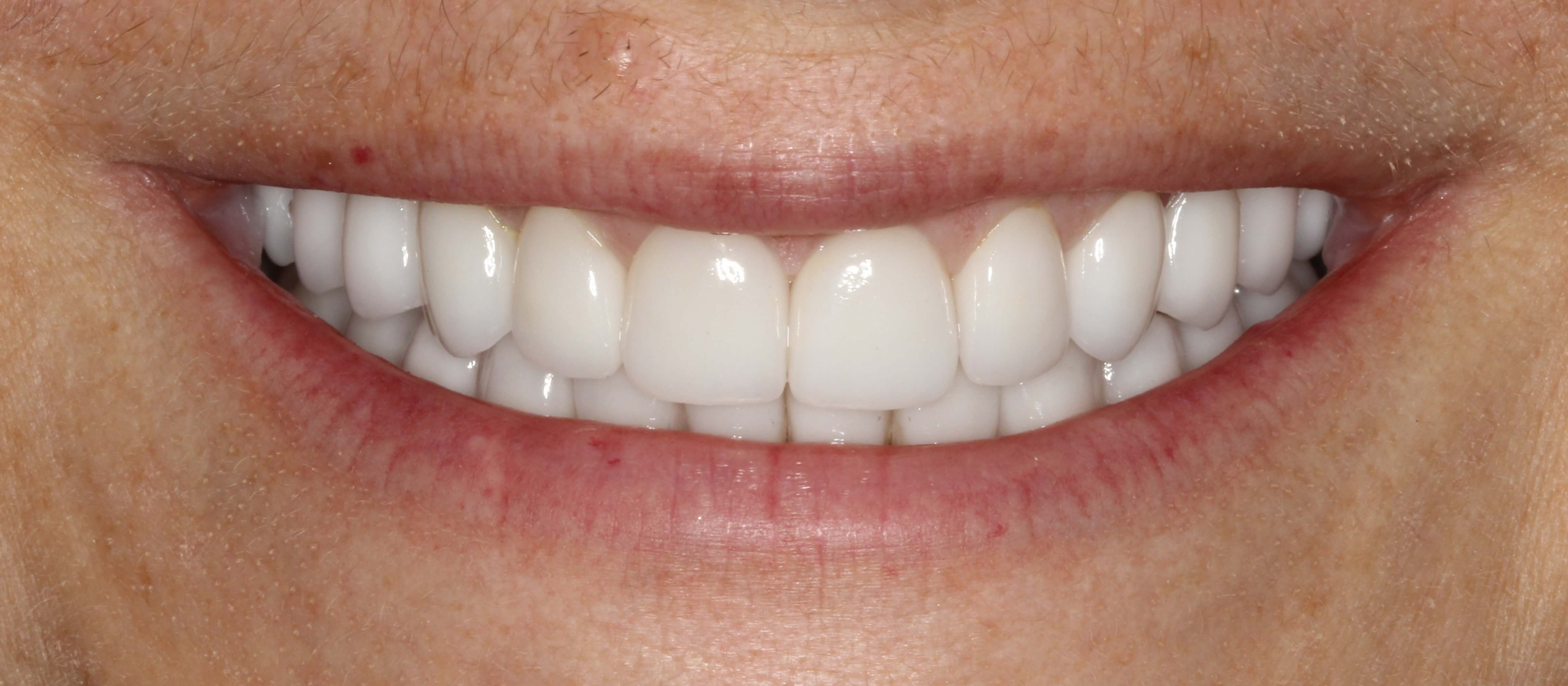 Beautiful Smile Makeover NYC After