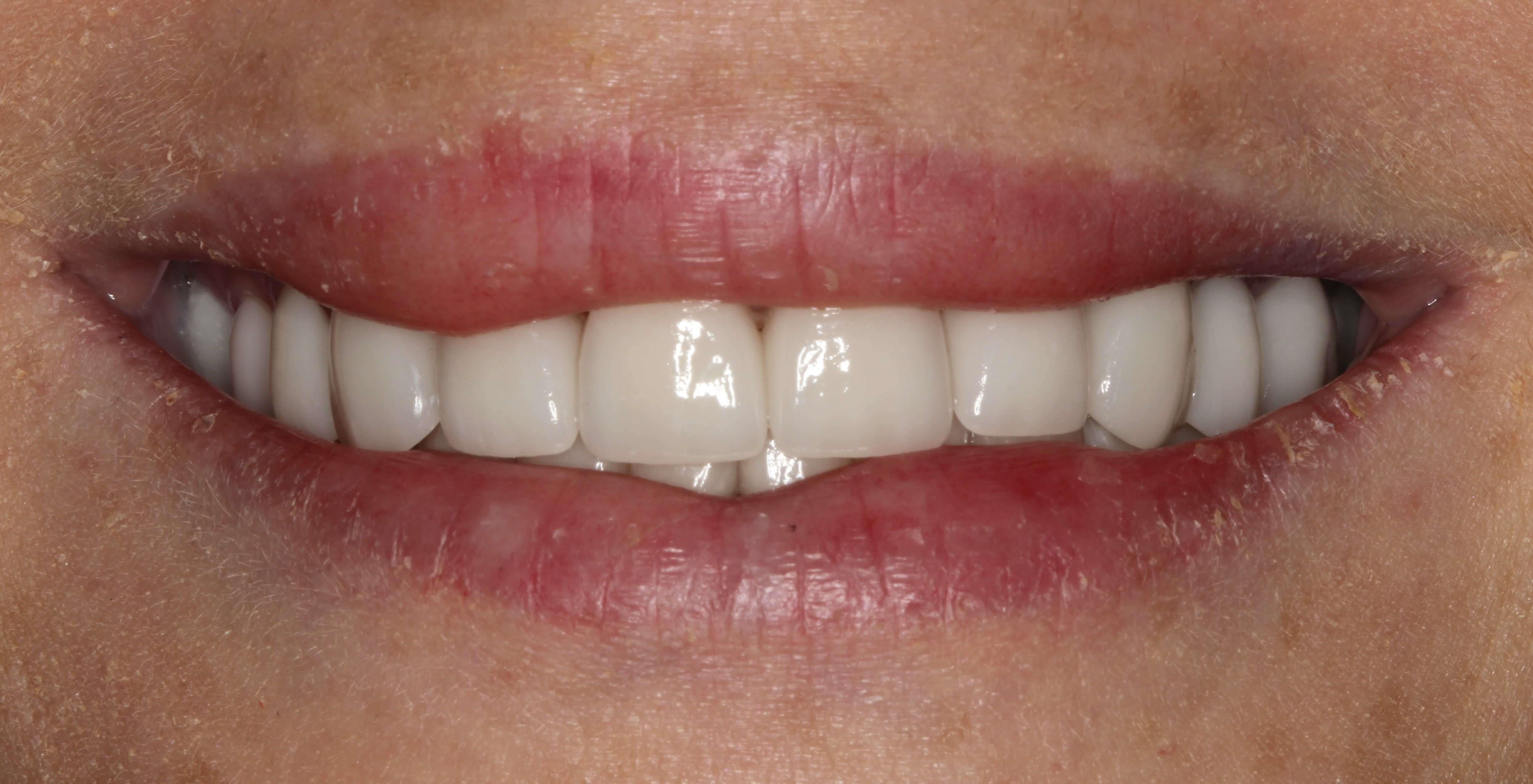 Veneer Replacement at SmilesNY After