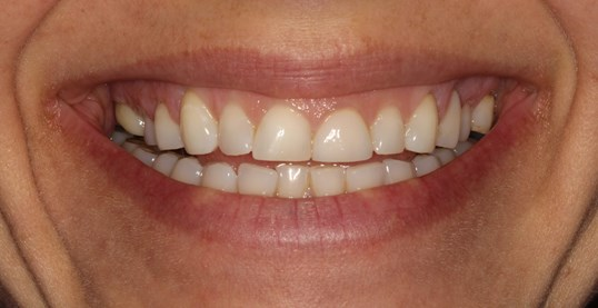 Veneers at SmilesNY Before