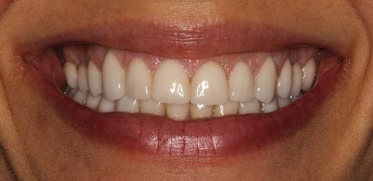 Veneers at SmilesNY After