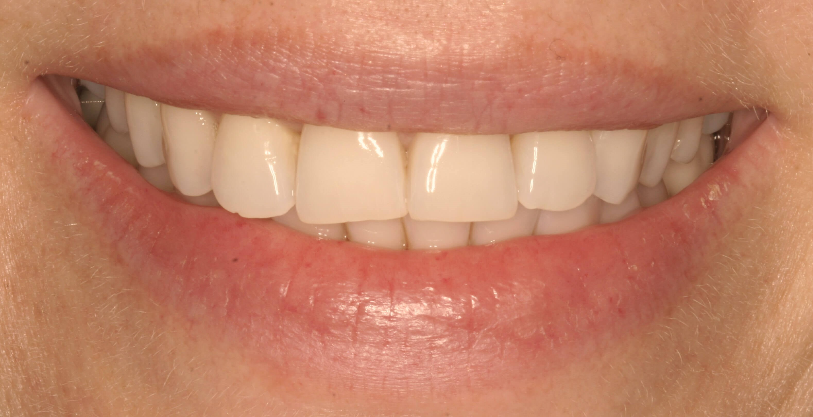 Pretty Veneer Smile Makeover Before