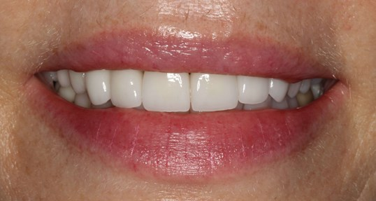 Pretty Veneer Smile Makeover After