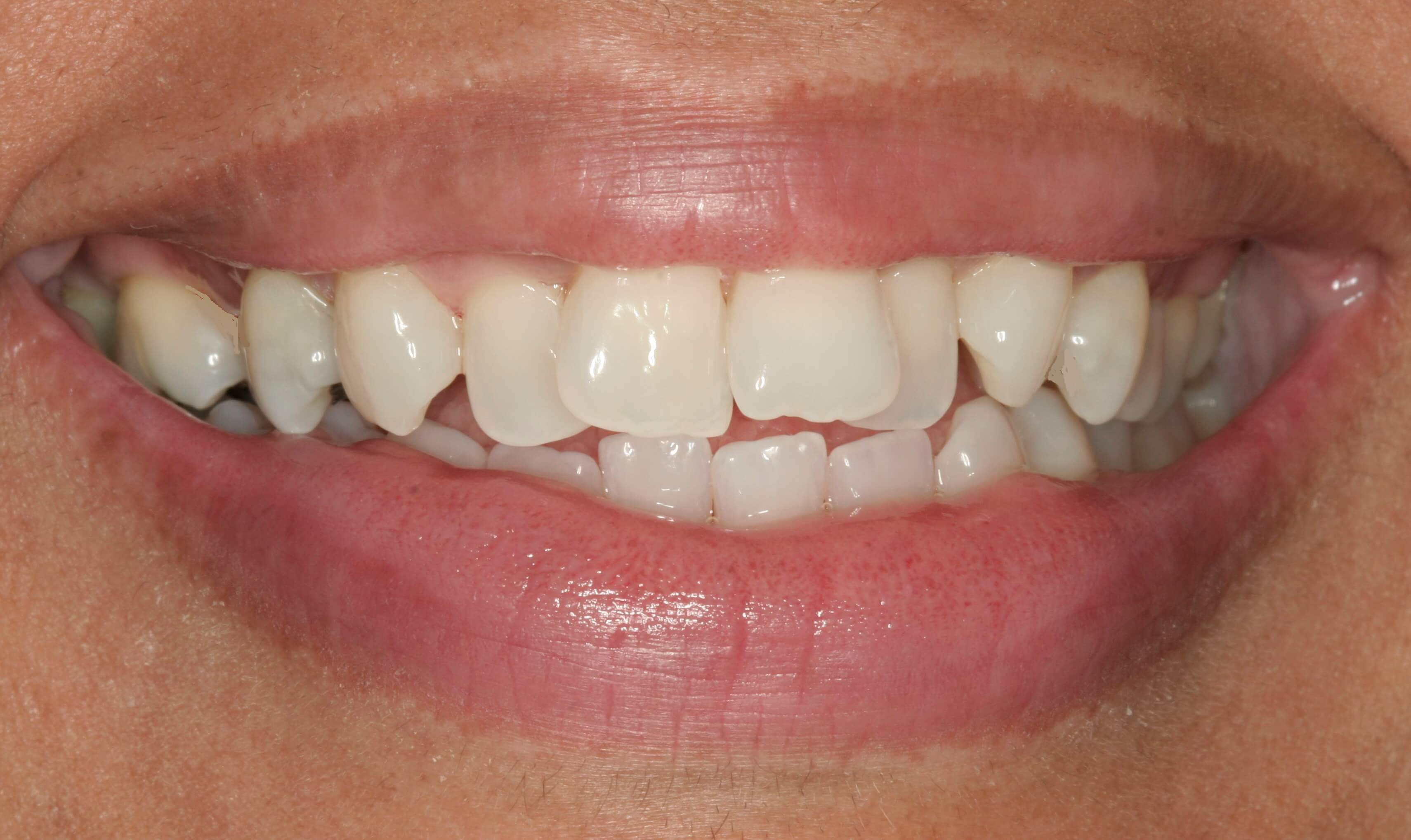 Invisalign Treatment Before