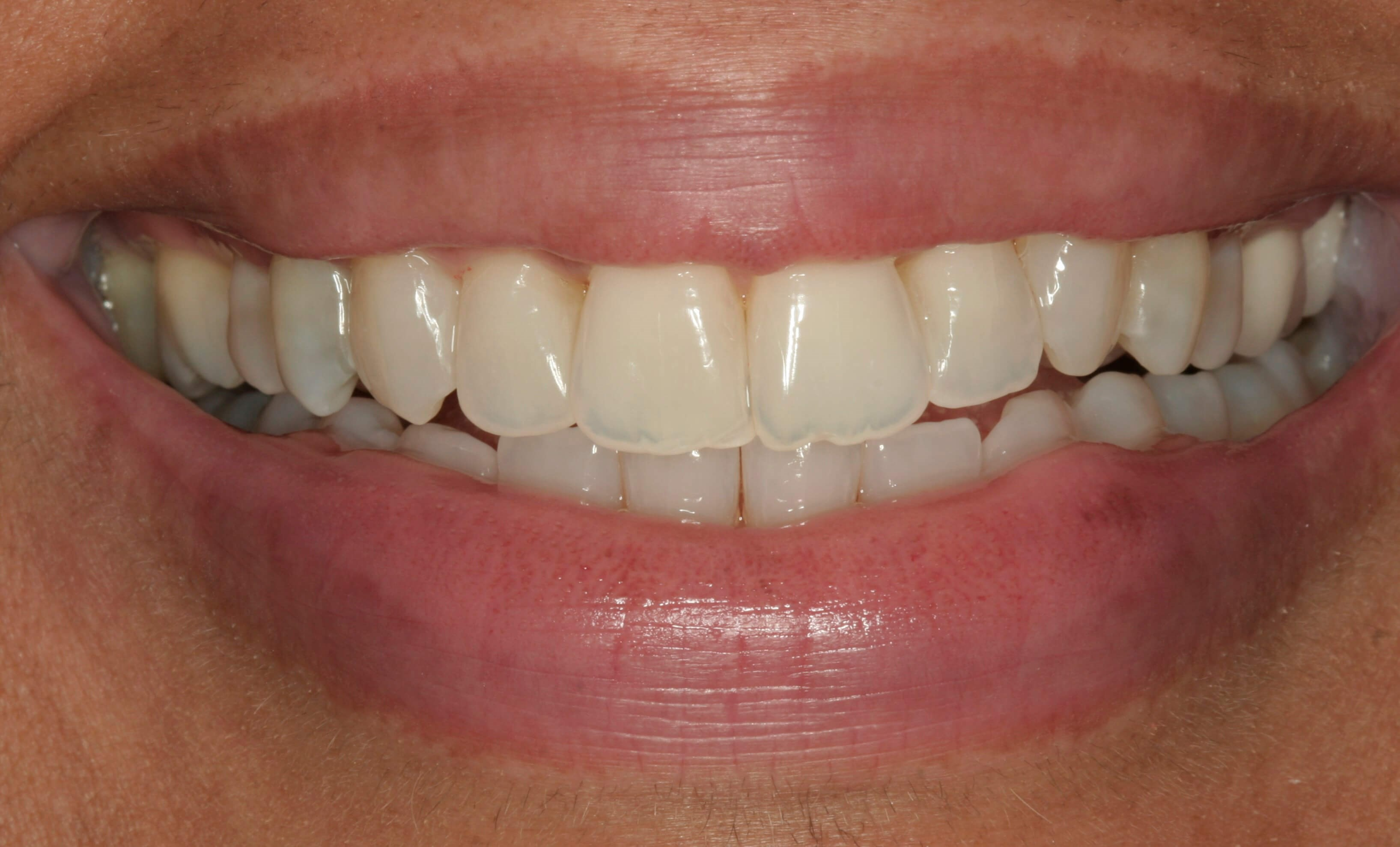 Invisalign Treatment After