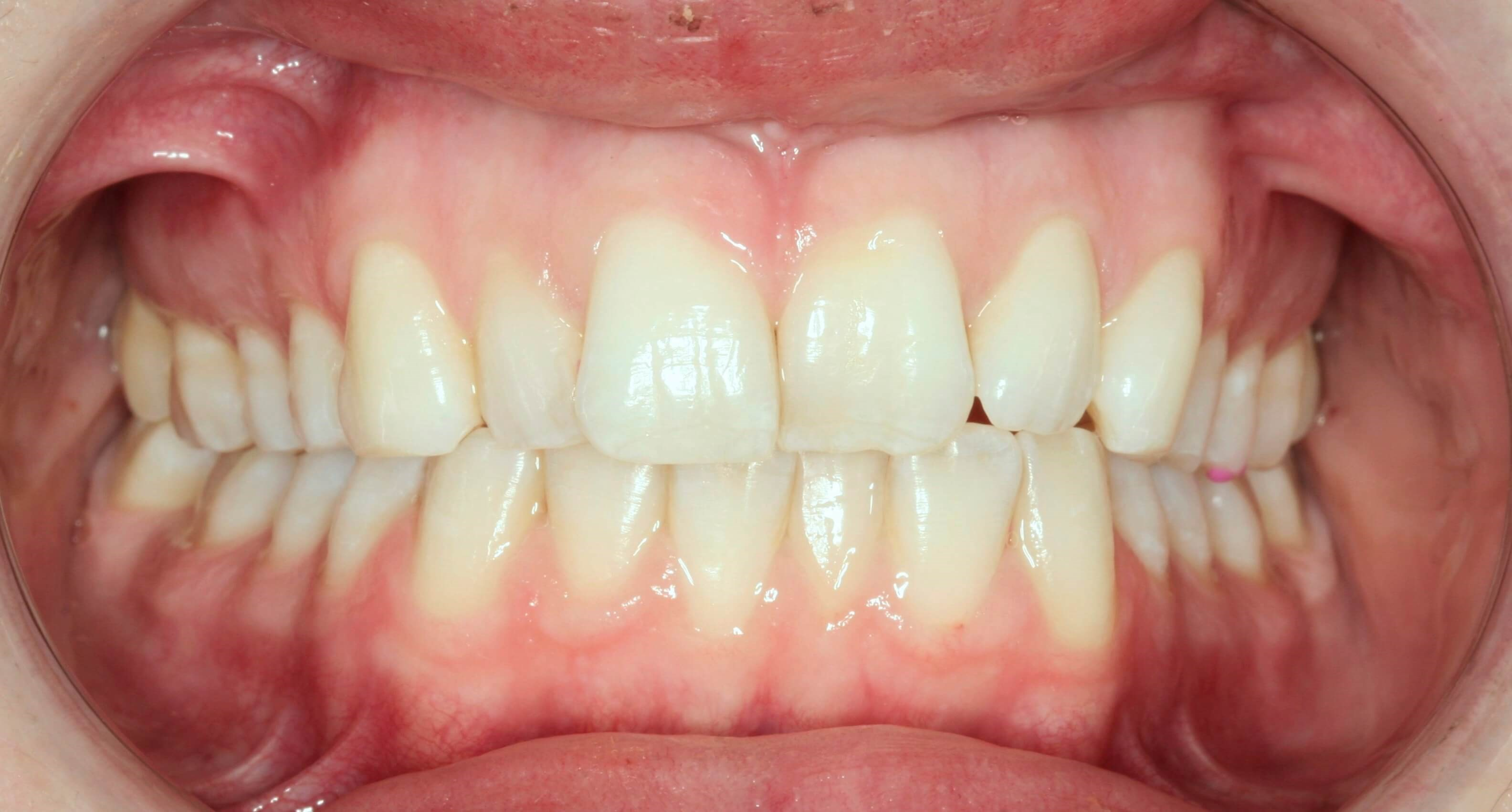 Amazing Invisalign Cases Before
