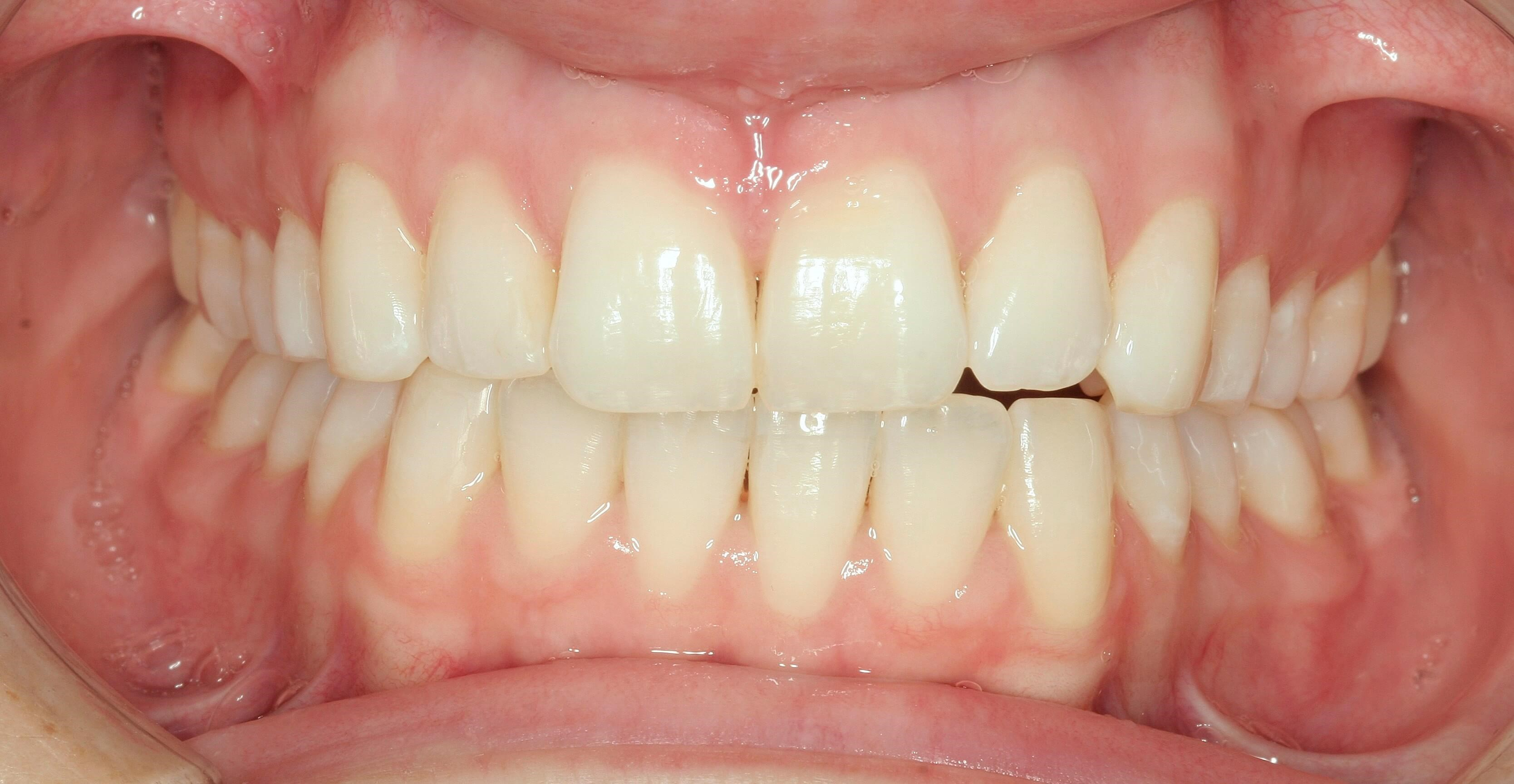 Amazing Invisalign Cases After