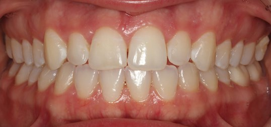 Invisalign Treatment SmilesNY After
