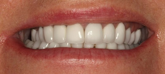 Smile Reconstruction NYC After