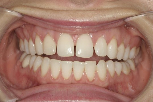 Close Gaps with Veneers Before