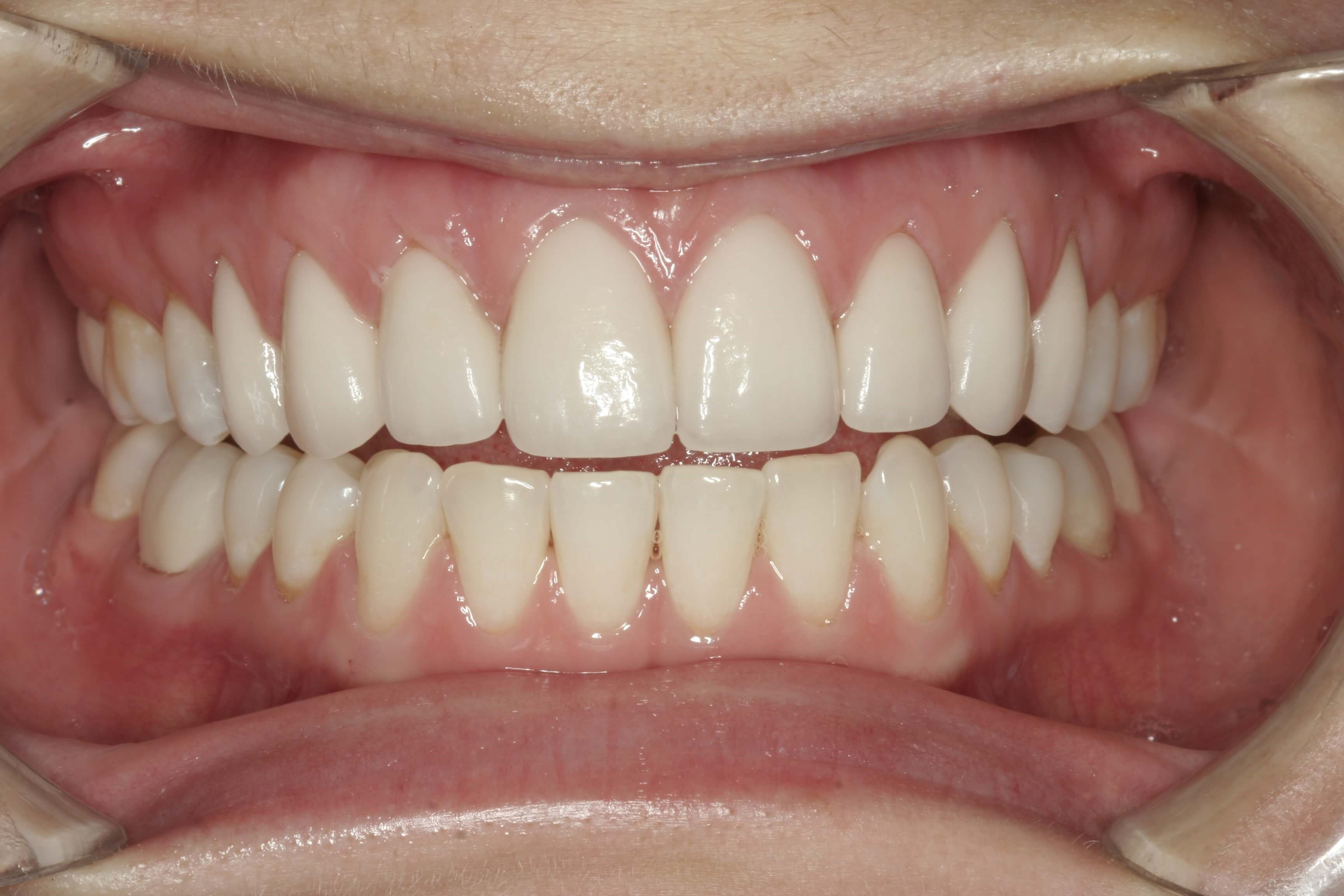 Close Gaps with Veneers After