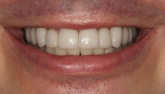 Porcelain Veneers in New York After