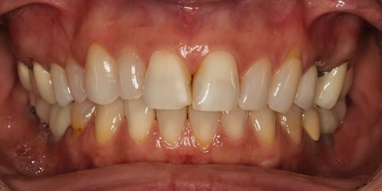 Implant Crown and Veneer Case Before