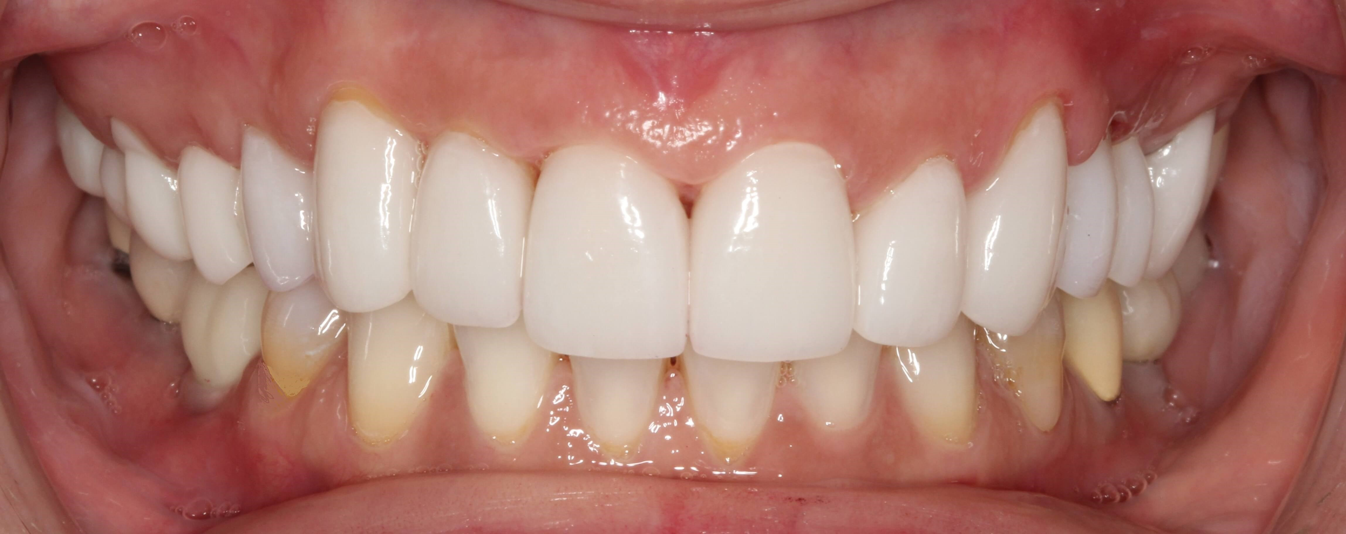 Implant Crown and Veneer Case After