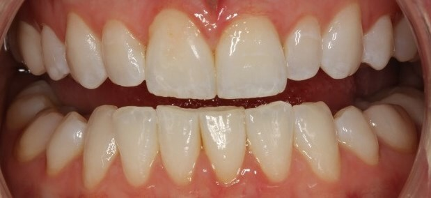 Porcelain Veneer Makeover Before