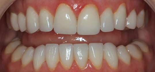 Porcelain Veneer Makeover After