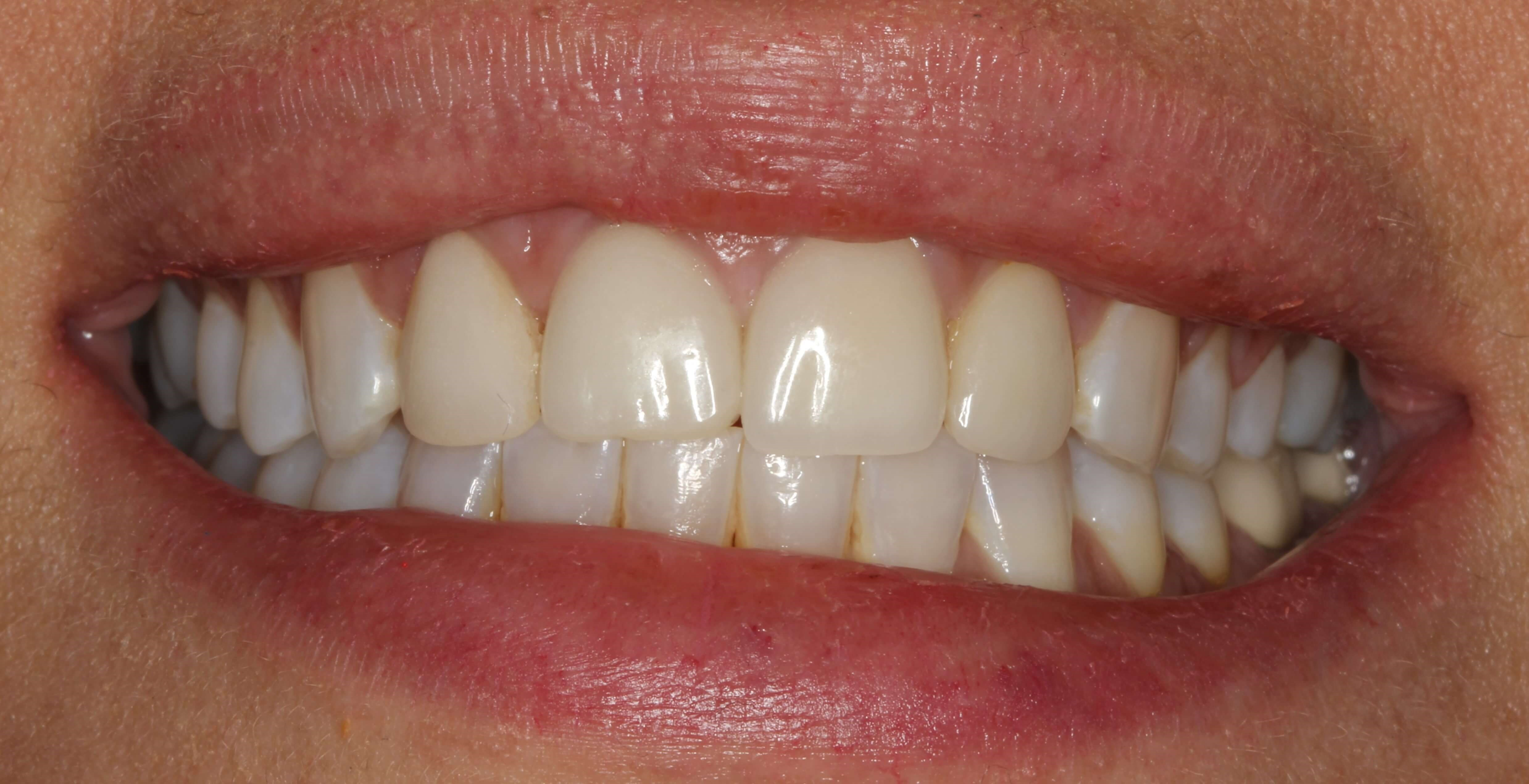 Veneer Smile Makeover NYC Before