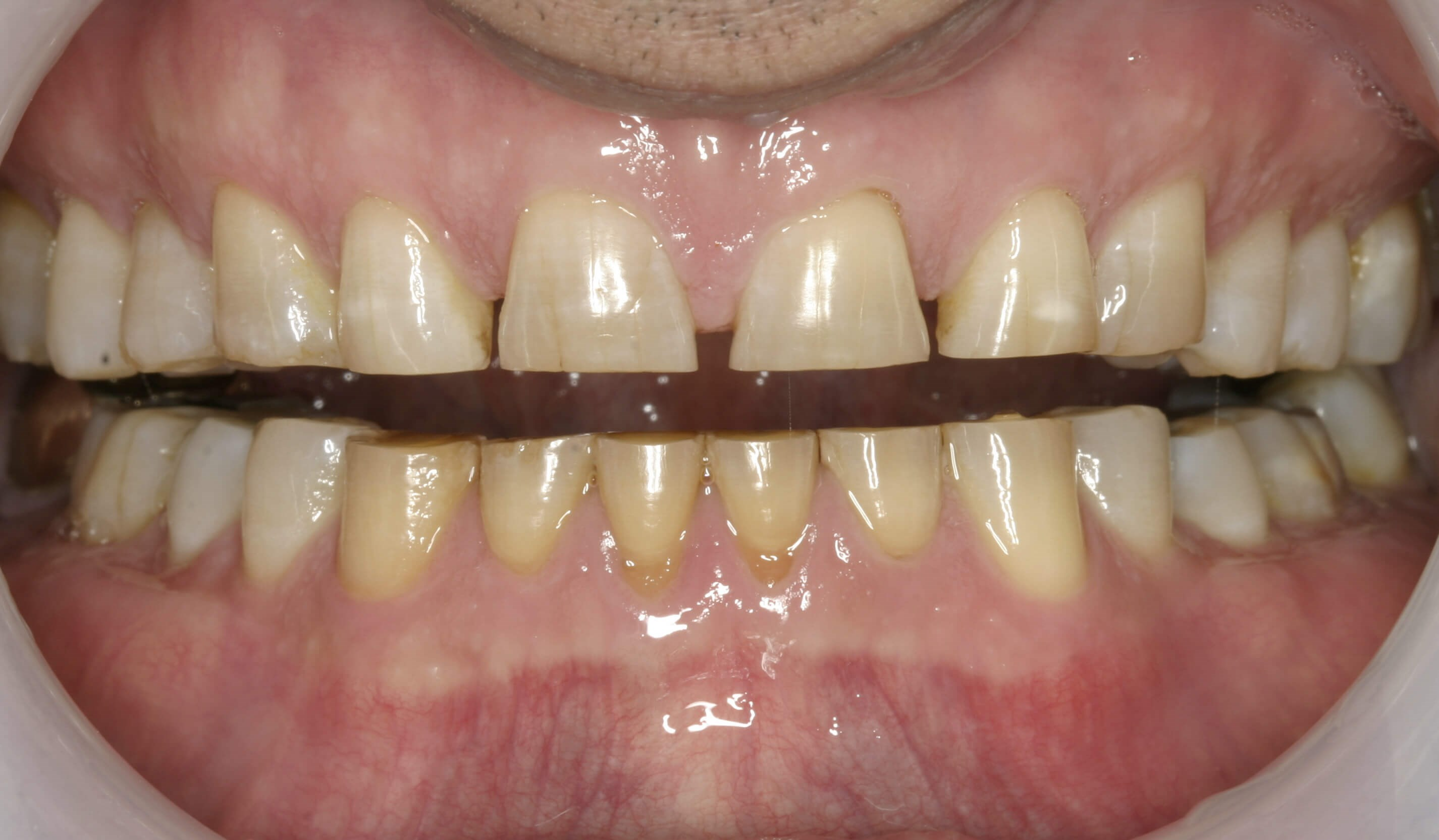Severe Wear Full Mouth Case Before