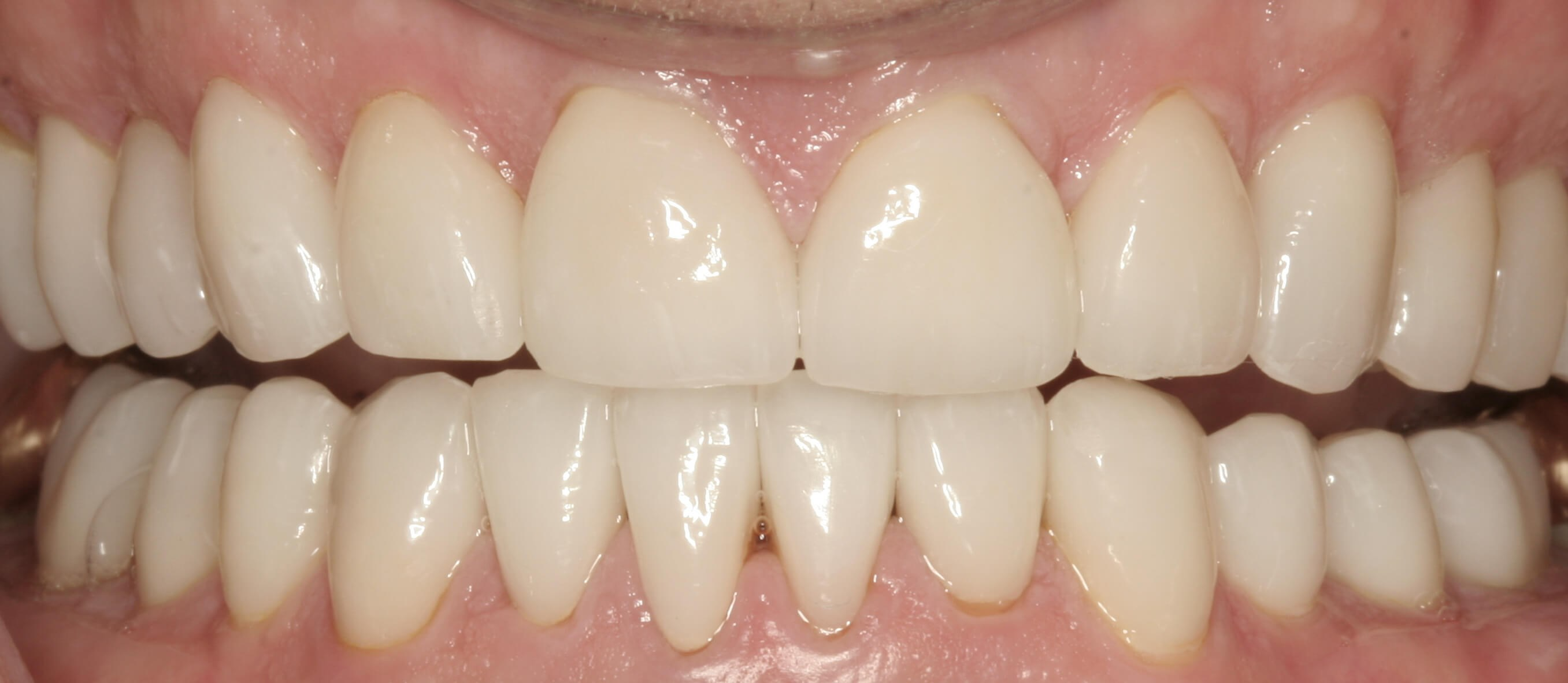 Severe Wear Full Mouth Case After