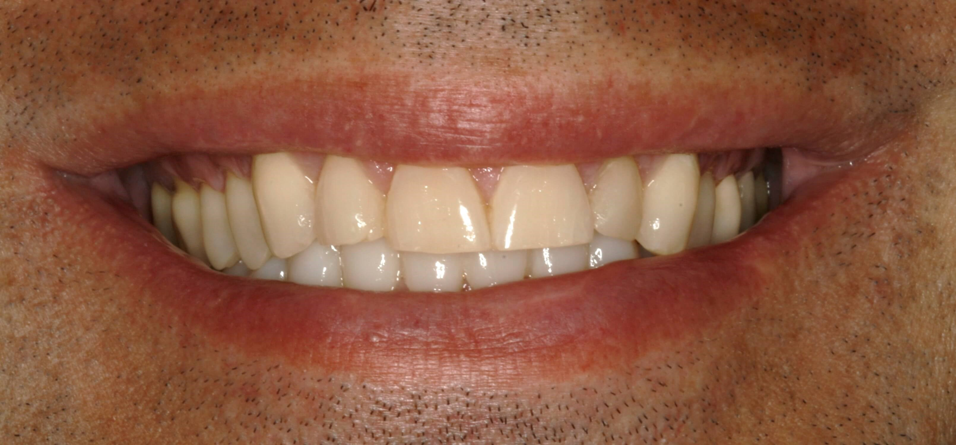 Full-Mouth Reconstruction NYC Before