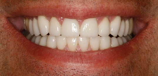 Full-Mouth Reconstruction NYC After