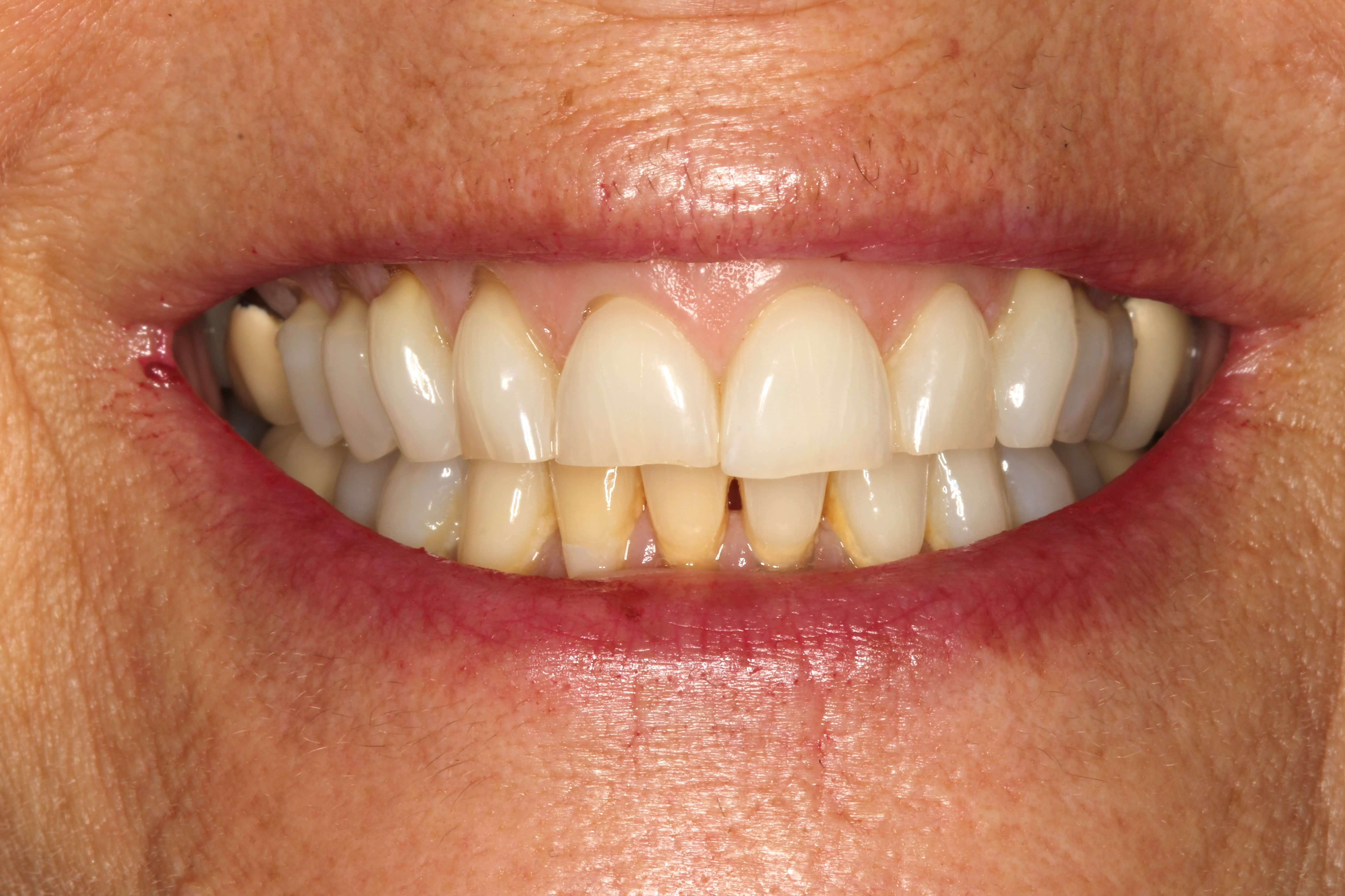 Smile Makeover for Short Teeth Before