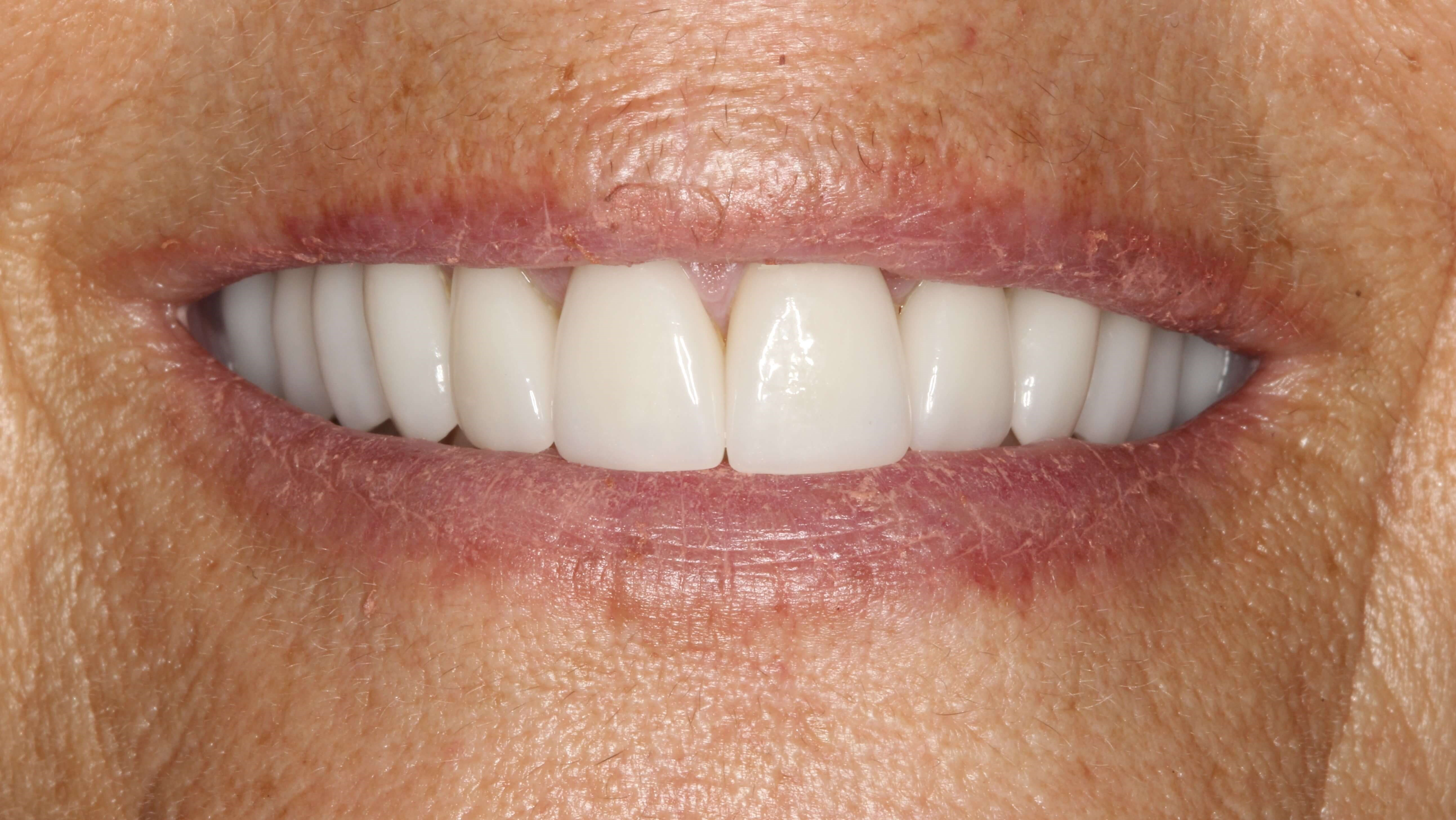 Smile Makeover for Short Teeth After