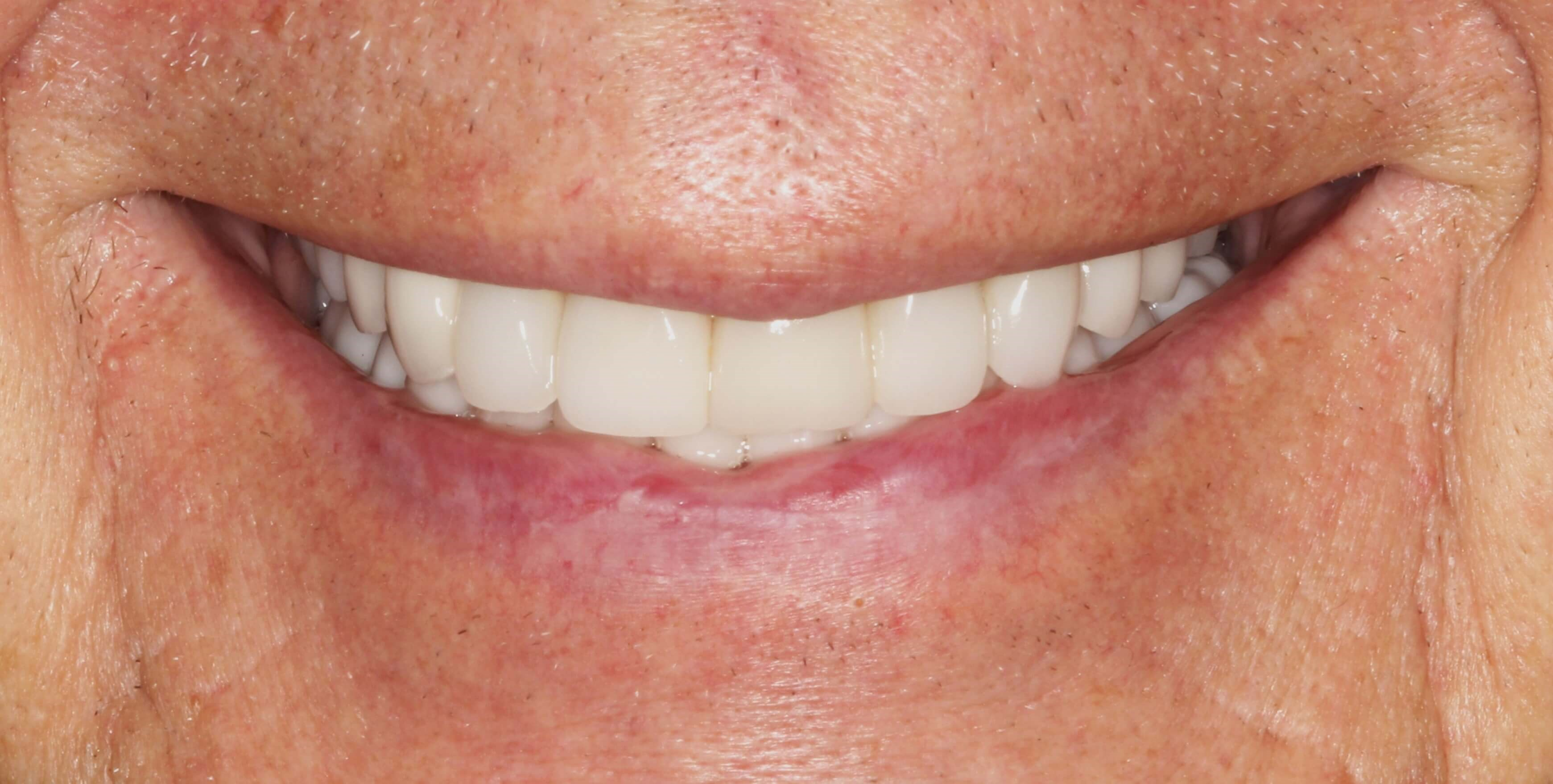 Smile Makeover at SmilesNY After