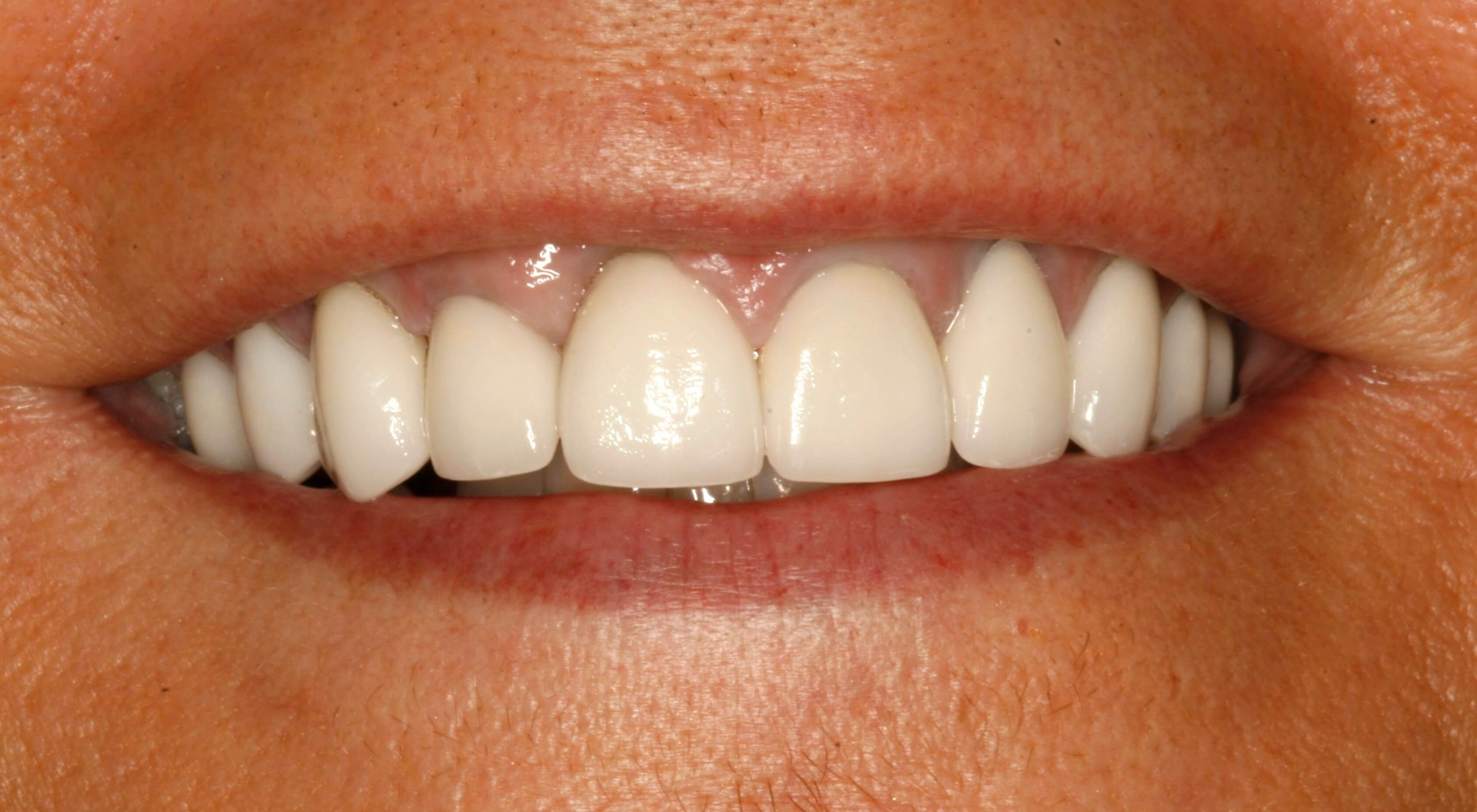 White Smile Makeover New York After