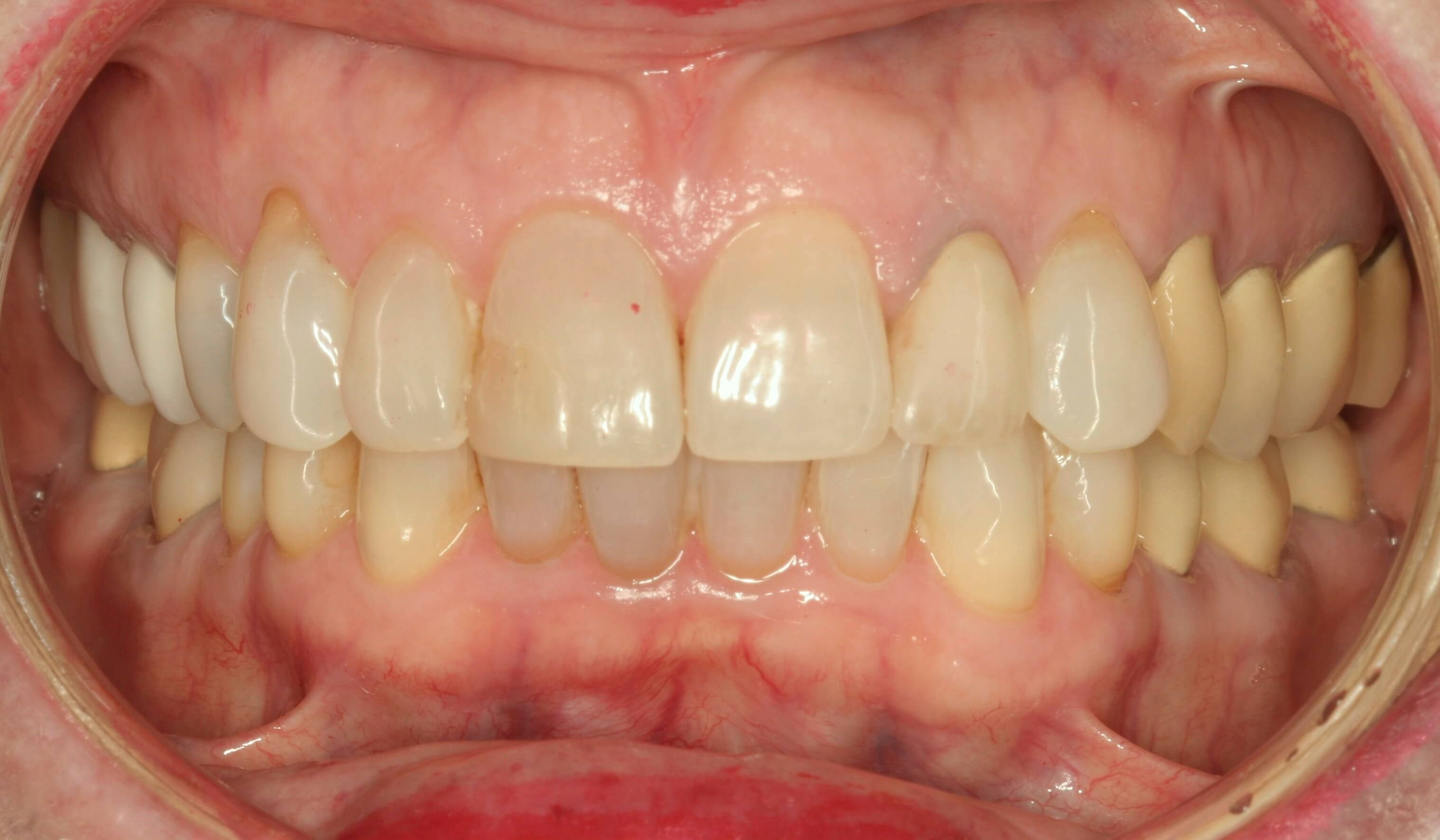 White Smile with Veneers Before