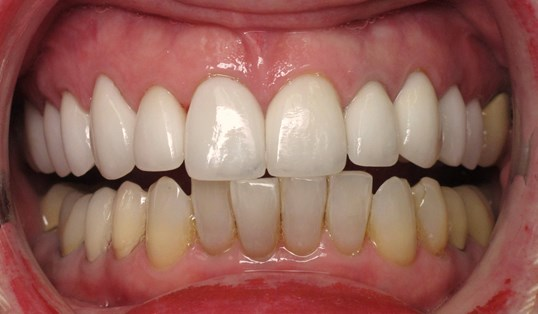 White Smile with Veneers After